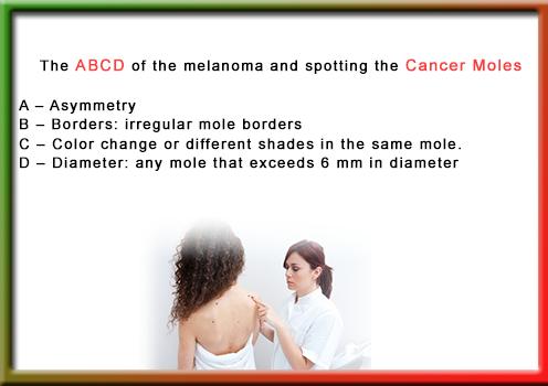 How to Spot Cancerous Moles