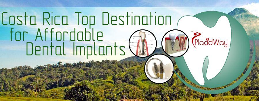 Costa Rica – Top Destination For Affordable Dental Implants
