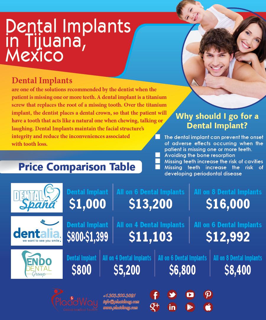 Infographics: Dental Implants in Tijuana Mexico