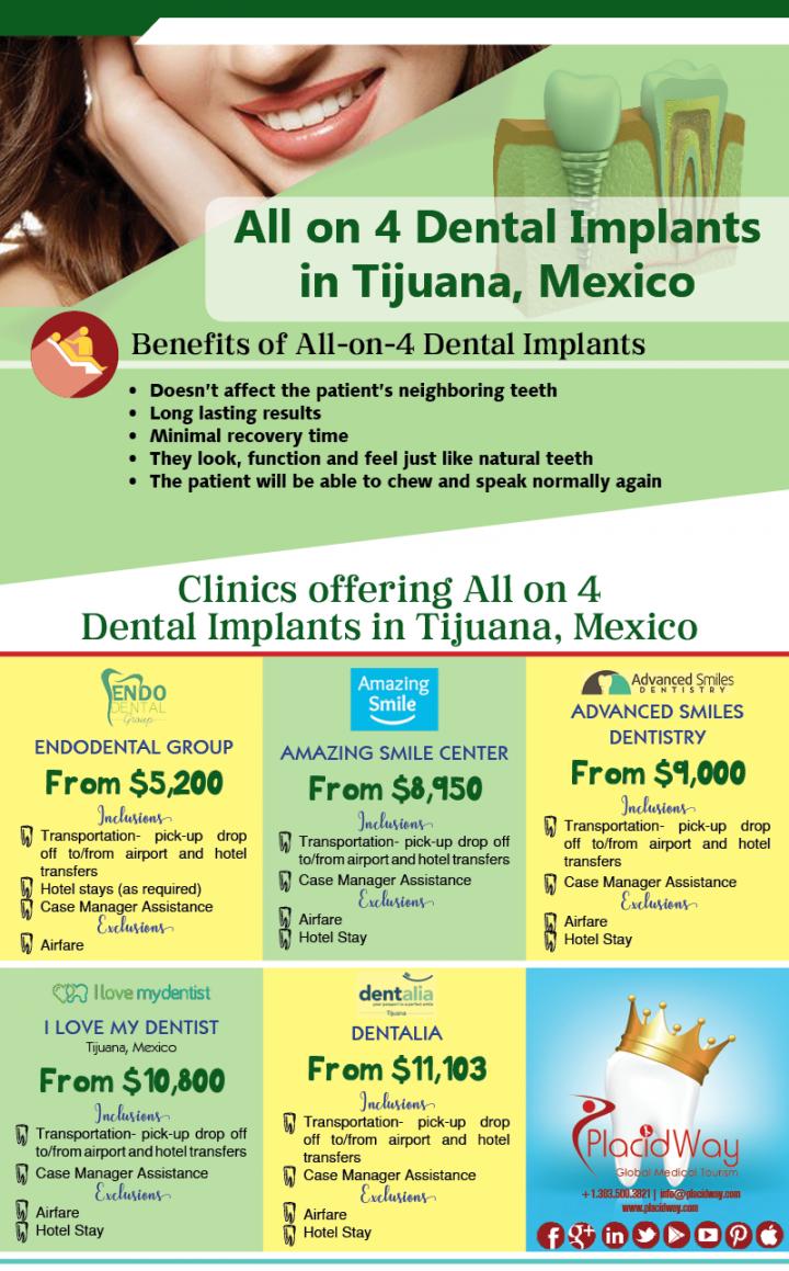 Infographics: All on 4 Dental Implants in Tijuana Mexico