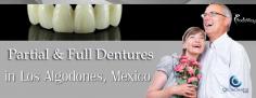 Full and Partial Dentures in Los Algodones Mexico