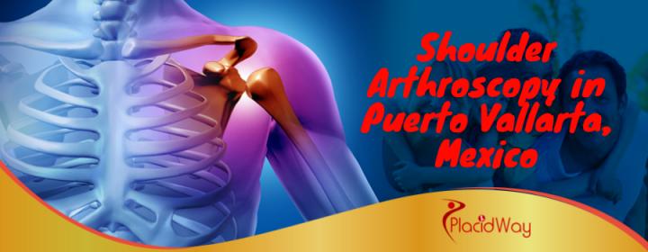 Best Shoulder Arthroscopy Package in Puerto Vallarta, Mexico